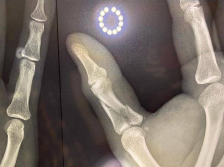 vj ma ka pa anand finger injury and fractured xray photo goes viral on social media