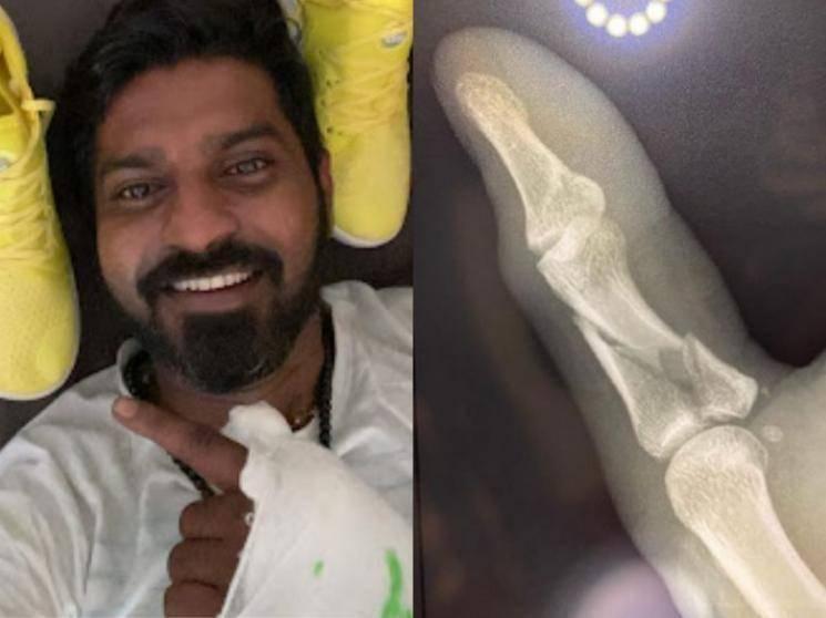 மாகாபா ஆனந்திற்கு ஏற்பட்ட திடீர் காயம்!-முக்கிய விவரம் உள்ளே! - Tamil Movies News