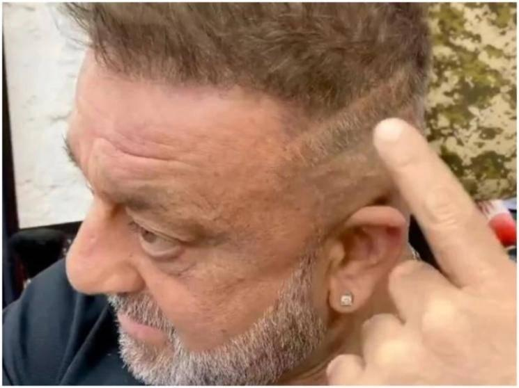 Sanjay Dutt set to resume KGF: Chapter 2, shows off his scar post treatment